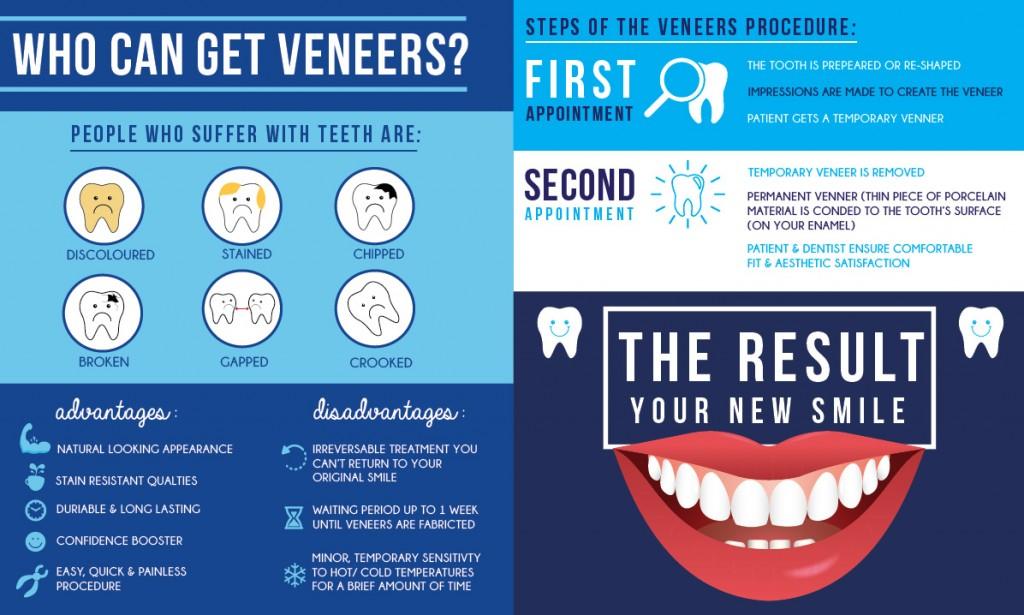 veneer-infograph