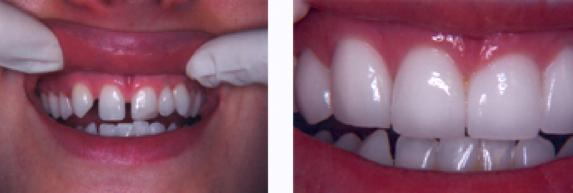 Not photos shaved teeth for porceline veneers